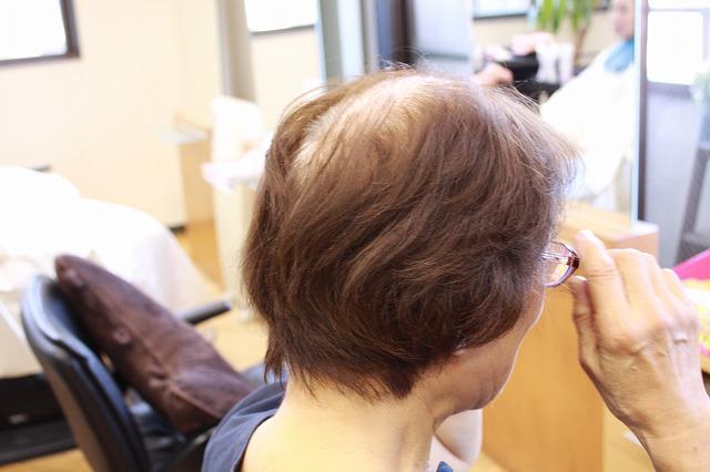 以前の髪の状態 トップペタンコ
